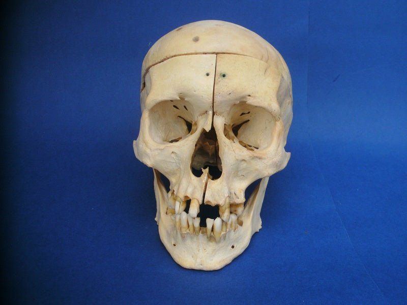 Antique medical human skull with sagittal section.
