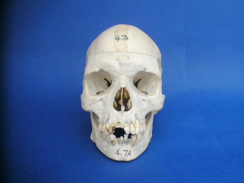 Antique medical human skull with good dentition.