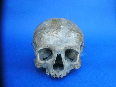 Antique partial real human skull, medical specimen