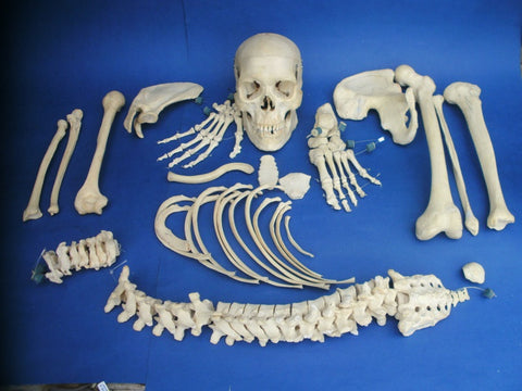 Vintage real human half medical skeleton in good condition.