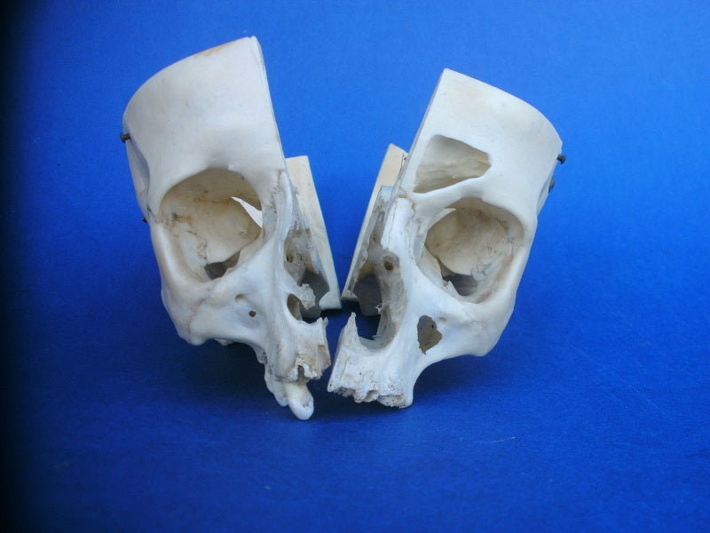 Real human medical partial skull sagittal section for sale
