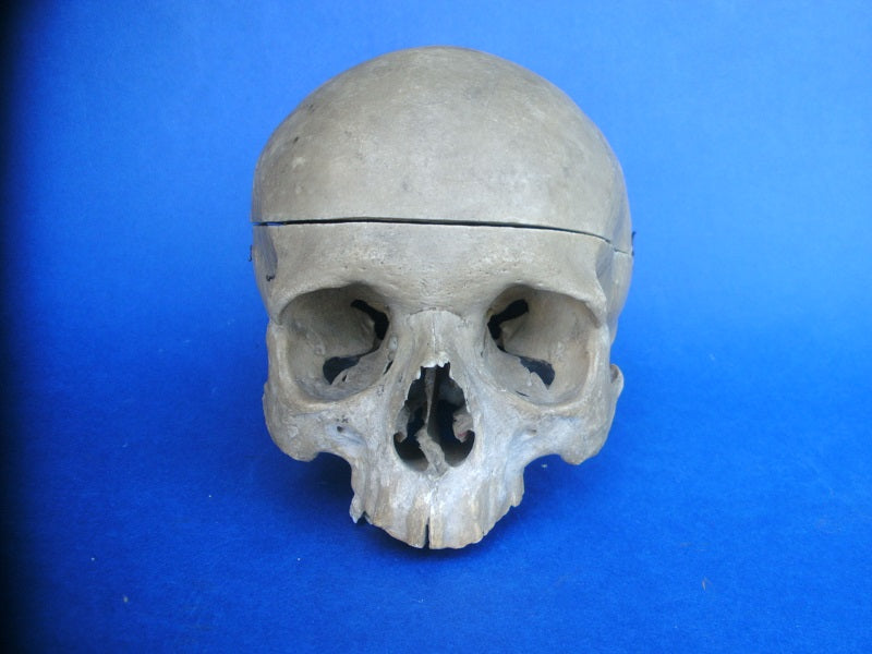Antique partial real human medical skull for sale
