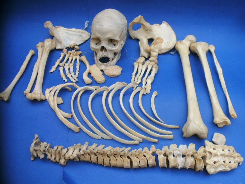 Vintage real human half medical skeleton in box for sale.
