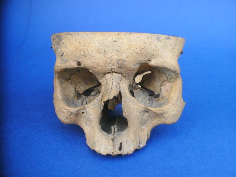 Partial section real human skull medical specimen