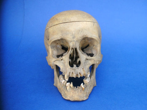 Real antique human skull medical specimen