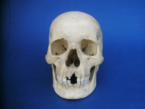 Vintage real hman medical skull with uncut calvarium