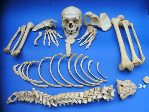 Adam Rouilly real human half medical skeleton in good condition