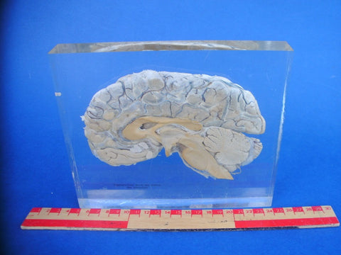 Sagittal section of a real human brain encased in resin Medical exhibit.