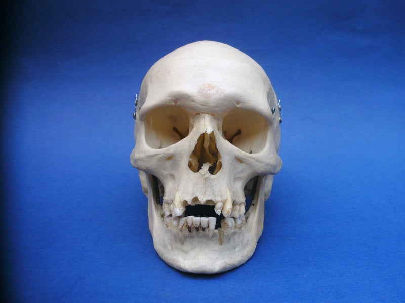 Real human medical skull for sale