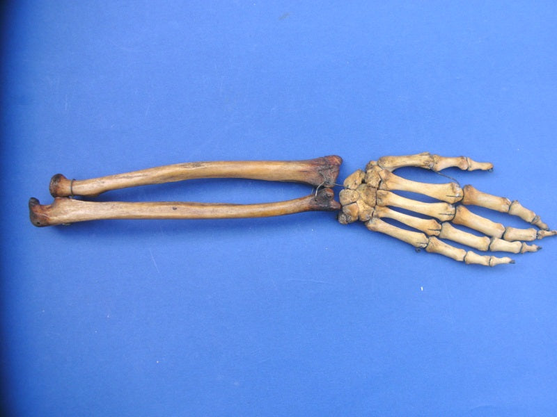 Antique real human medically prepared articulated arm for sale