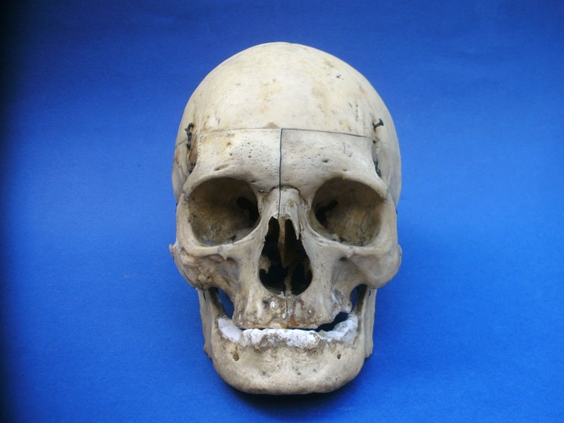 Antique real human medical skull with sagittal section for sale