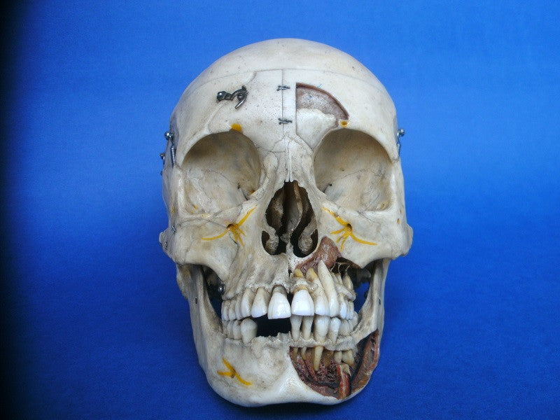 Antique Adam Rouilly real human skull cut away medical specimen