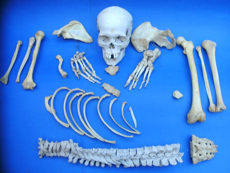 Real human half medical skeleton good condition for sale