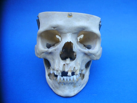 Partial real human skull, medical specimen
