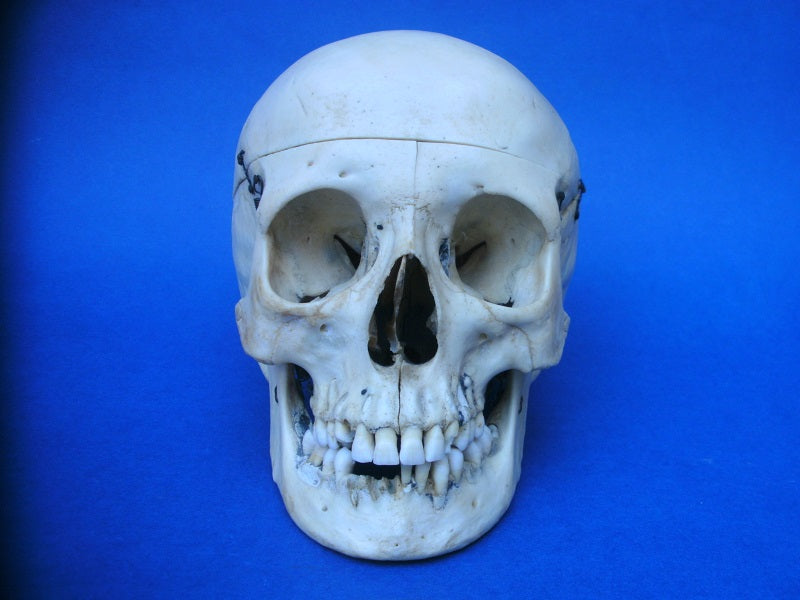 Antique real human skull for sale medical specimen sagittal section