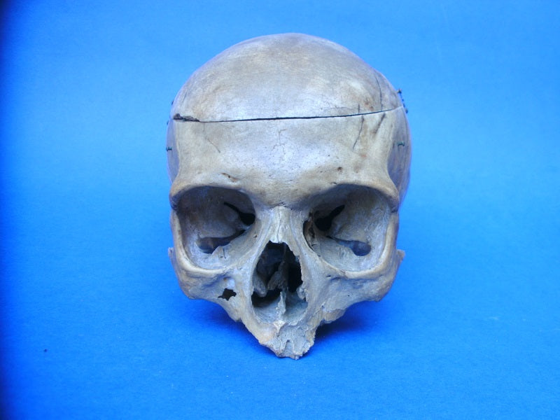 Antique medical real human partial skull for sale with old injury scars