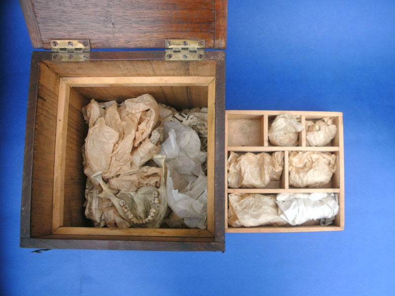Vintage disarticulated real human medical skull for sale in wooden box