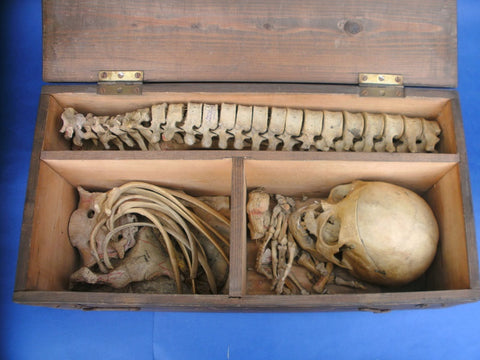 Fascinating antique annotated real medical skeleton in box