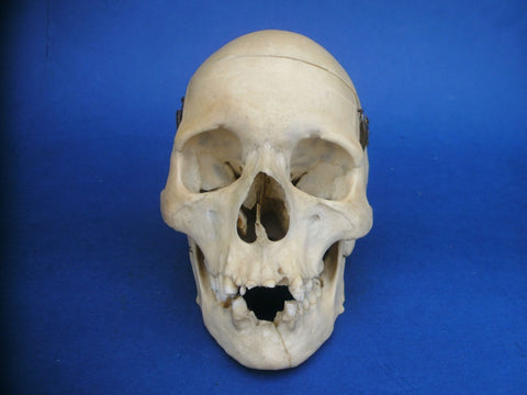 Real human medical skull showing Atlanto-occipital fusion and deformity