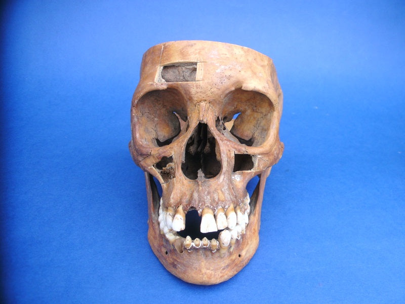 Antique medical real human skull for sale with exposed sinus