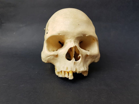Partial real human skull medical specimen