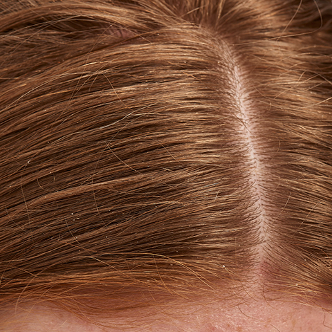 Close up of hair parting showing oily scalp