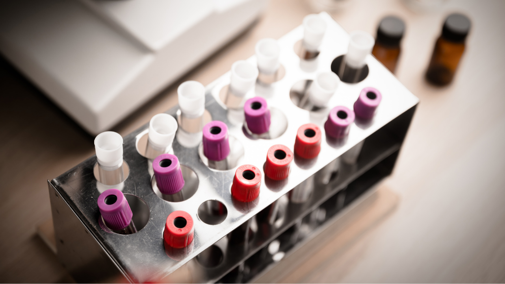 COVID-19 Test and Laboratory Sample of Blood Testing for Diagnos