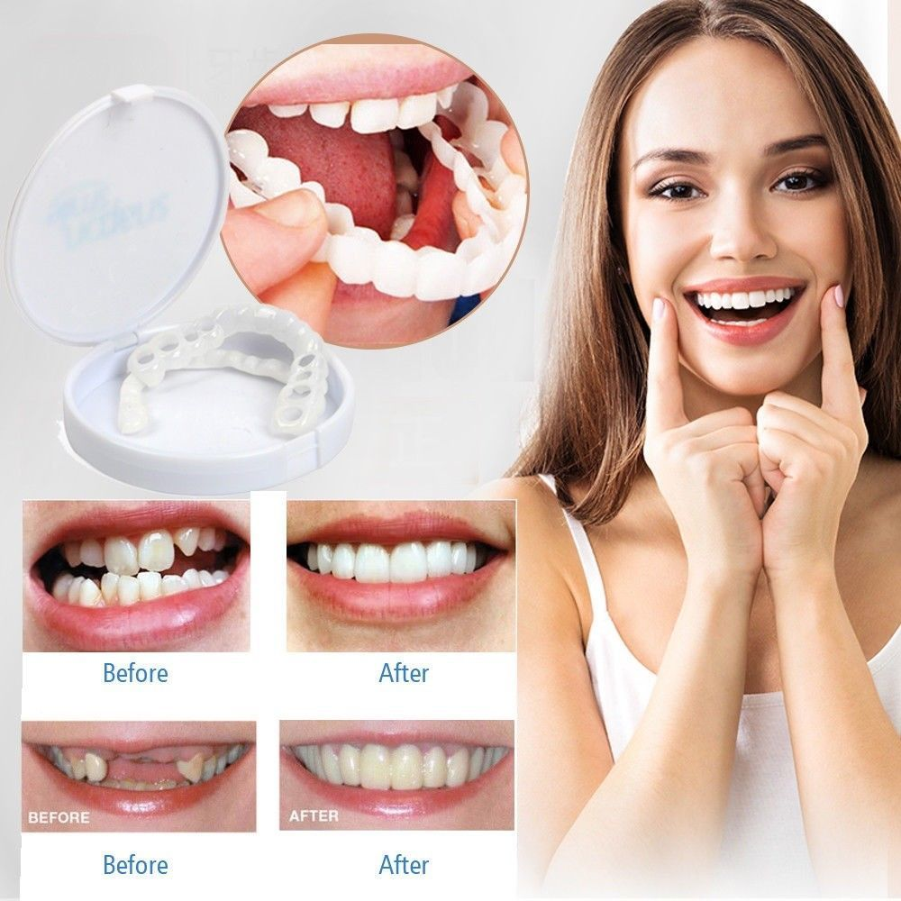 Perfect Teeth Veneers (Upper Side Attachment Only) (Original : PTVN)