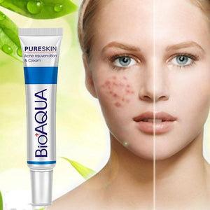 30g BIOAQUA Skin Care Acne Face Treatment Cream (Original : DRM)