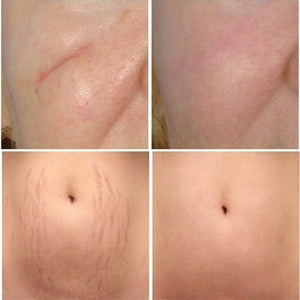 Passel Scar Removal Stretch Marks Maternity Skin Body Repair Cream (Original : PCREAM)