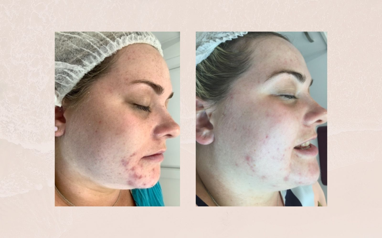 Adult acne before and after facial