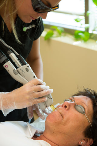 Laser Facial Hair Removal Treatment