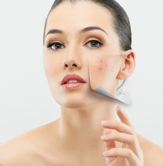 clinical acne
