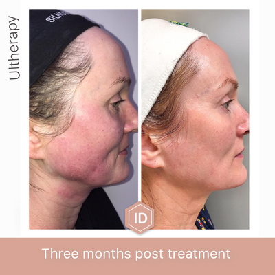 Ultherapy: 3 months post treatment