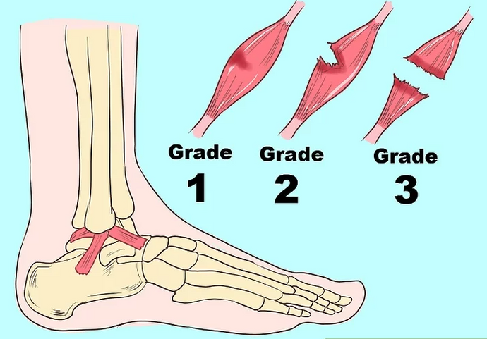 Sprained Ankle Heal Time? - Solution By Expert