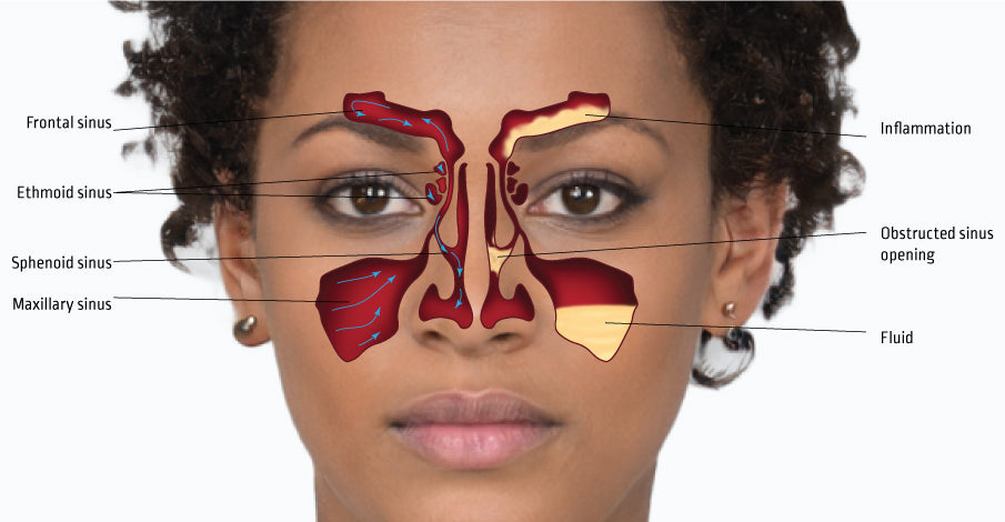 What is sinusitis? How to treat a sinus infection?