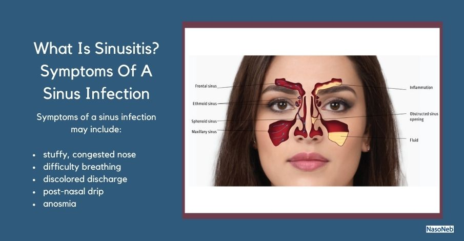What Are The Symptoms Of A Sinus Infection?
