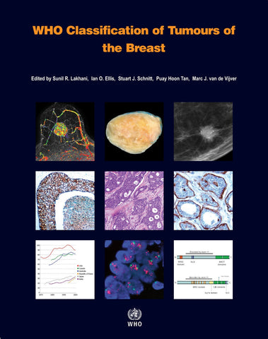 WHO Classification of Tumours of the Breast (PDF)
