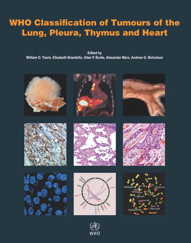 WHO Classification of Tumours of the Lung, Pleura, Thymus and Heart (PDF)