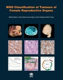 WHO Classification of Tumours of Female Reproductive Organs (PDF) 2014