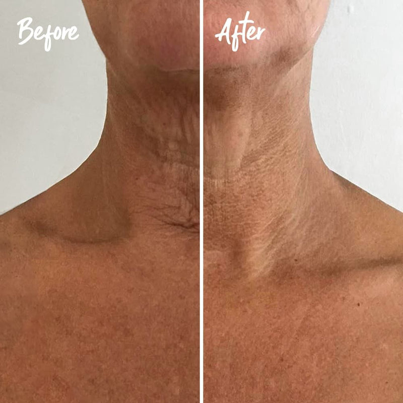 Instant Effects Neck and Chest Rejuvenating Serum 30ml