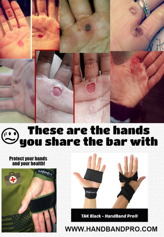 these are actual ripped hands from crossfitters on instagram. This can be PREVENTED with HandBand Pro®!