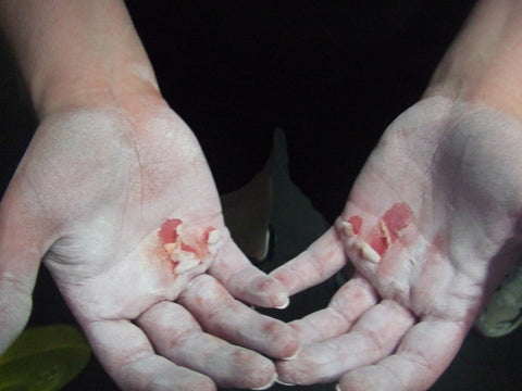 Ripped hands from Crossfit