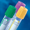 BD VACUTAINER® PLUS PLASTIC BLOOD COLLECTION TUBES (EDTA)