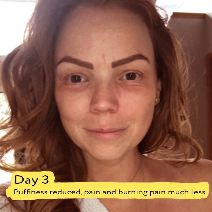 portia-ella products work to calm my skin reaction