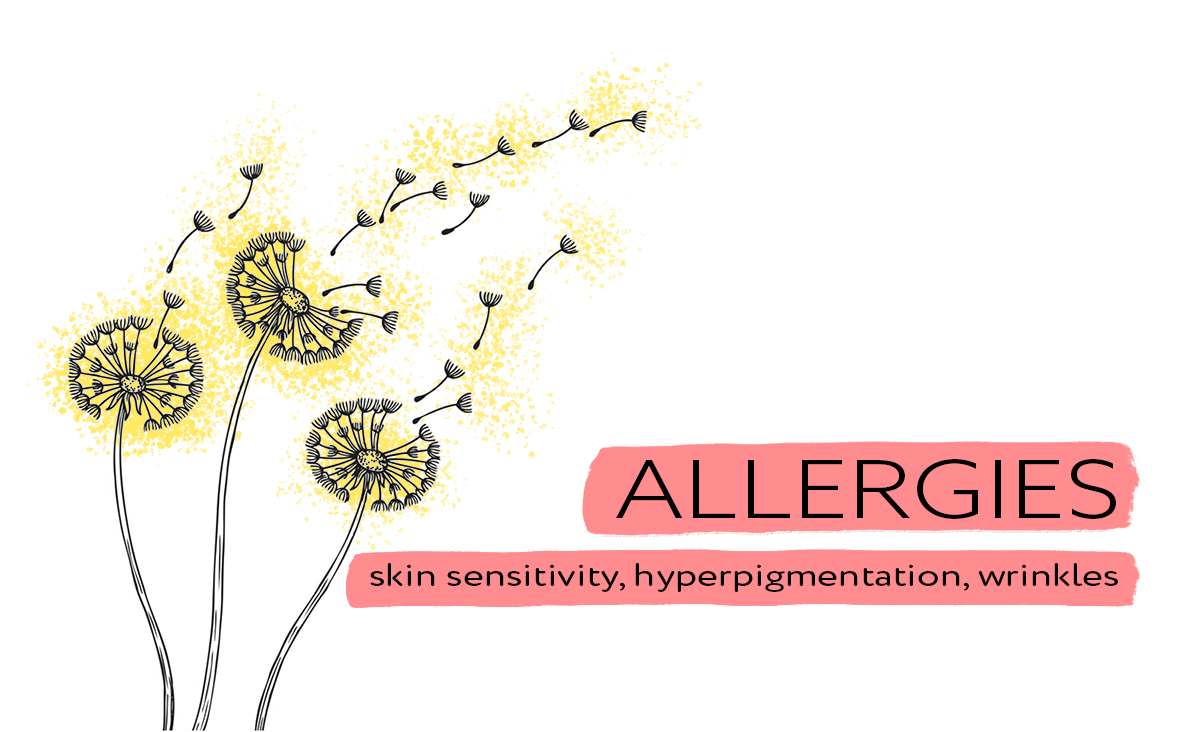 allergies and how to calm them