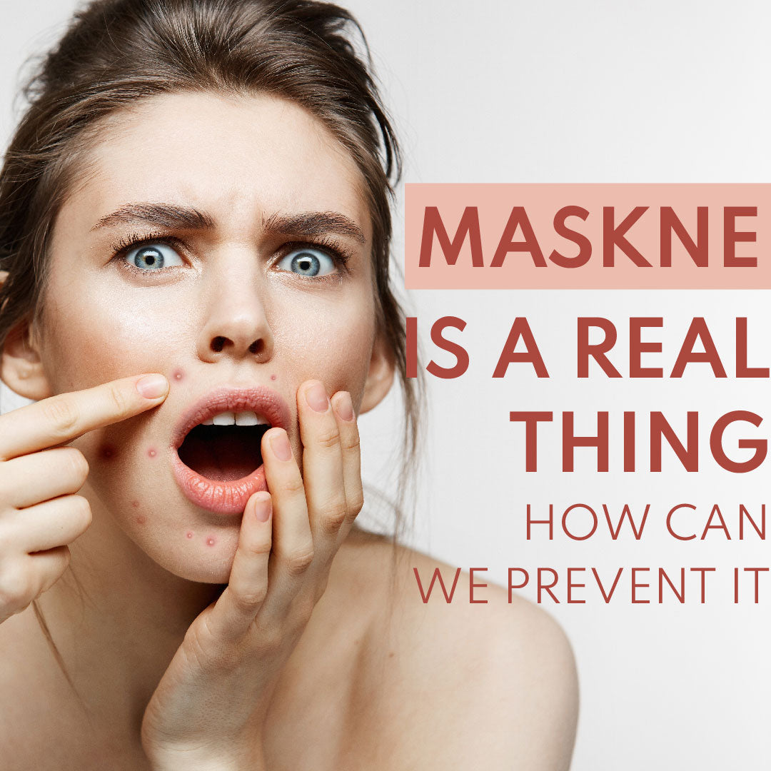 What Is Maskne And How To Prevent It