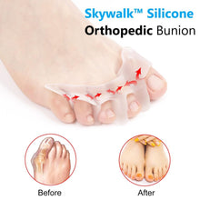 Load image into Gallery viewer, Skywalk™ Men & Women Silicone Orthopedic Bunion Corrector 2.0 | Free Size Posture Corrector