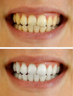 Crest 3D White Whitestrips Professional Effects - LUXE Edition