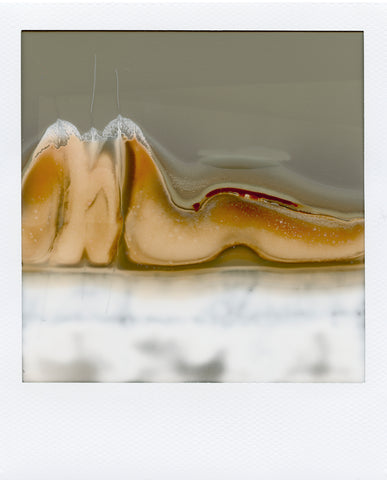 "Rebecca Hackemann, ""Untitled 6 (from the Post Polaroids series)"""